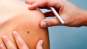 Удаление новообразований и дерматоскопия: родинок, невусов, папиллом, кондилом, бородавок! Скидка до 75%