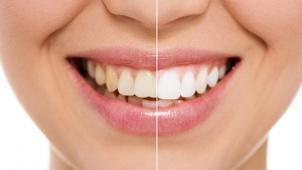 Скидка  до 54% на косметическое отбеливание зубов до 16 тонов по американской технологии в студии My Brilliant Smile