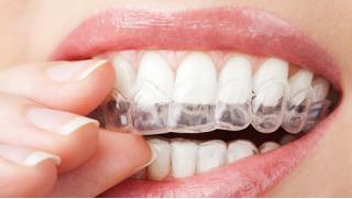Индивидуальные прозрачные каппы на 1 челюсть всего за 2600 руб! Осмотр и консультация, диагностика, изготовление и не только